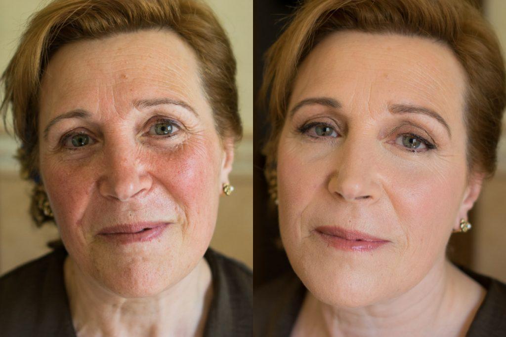 maquillaje madrina rosacea